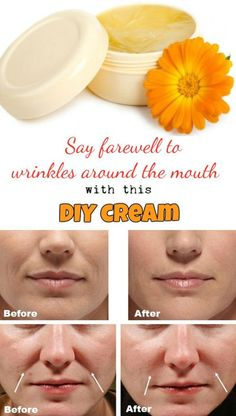 Say farewell to wrinkles around the mouth with this DIY cream.