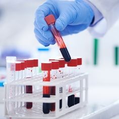 Blood Test May Be Able To Predict Breast Cancer Relapse White Blood Cell Count, White Blood Cells, Hiv Aids, Dna Project, T Cell, Normal Blood, Medical Laboratory, Healthy Aging, Labs