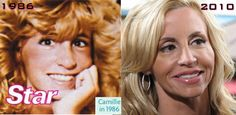 REAL HOUSEWIVES… Before and After   STOOPID HOUSEWIVES