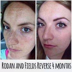 Before and after with rodan and fields reverse regimen. Her sunspots, freckles, and dark spots were drastically reduced! Details at https://njensen.myrandf.com