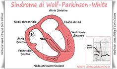 Sindrome di Wolf-Parkinson-White