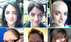 My hair journey after chemotherapy