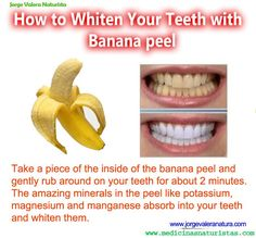 Whiten your teeth with banana peel  gonna have to try this...
