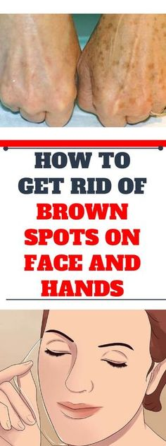 How to Get Rid of Brown Spots on Face and Hands. Age spots (lentigo senilis or lentigo solaris) are forms of pigment spots. Sun Spots On Skin, Black Spots On Face, Brown Spots On Skin, Dark Spots, Brown Skin, All You Need Is, Get Rid Of Warts, Remove Warts, How To Exfoliate Skin
