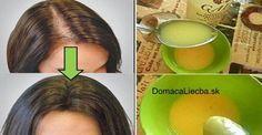 Trápi vás vypadávanie, pomalý rast alebo rednutie vlasov? Namiesto drahých prípravkov z obchodu na rast vlasov skúste tento domáci recept!