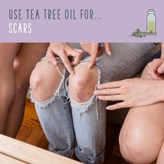 Tea Tree Oil For Scars Add tea tree oil to coconut oil, or a vitamin E oil, and apply it to scars to boost healing and reduce their appearance. You can also use a soap infused with tea tree oil to speed along the healing process. Oils For Scars, Oils For Skin, Tea Tree Oil Uses, Dark Spots On Skin, Happy Skin, Oil Benefits, Hair Oil, Good Skin, Sensitive Skin