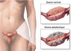 De plus en plus de femmes et de jeunes filles souffrent du syndrome des ovaires polykystiques (SOPK), qui se caractérise par des irrégularités dans les règles, des difficultés pour maigrir, un excès de duvet sur la peau, de l'acné, la chute des cheveux et des problèmes de fertilité, entre autres symptômes.