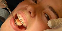 Keine Angst vor dem Zahnarzt! - Stresssituationen - Zittern, Schweißausbrüche und der Drang, die Flucht zu ergreifen. So geht es vielen Patienten.