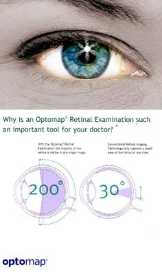 Why optomap retinal scan is better than any other eye imaging technology.