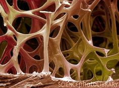 The image is a scanning electron microscope (SEM) image of bird bone.