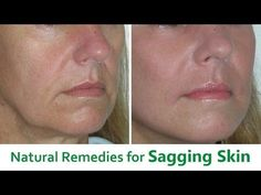 NO MORE SAGGING JAWLINE OR DOUBLE CHIN | GET RID OF YOU SAGGING CHIN SKIN IN 7 DAYS |Khichi Beauty - YouTube