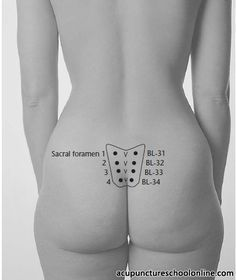 Sacral Bladder Points #Acupuncture