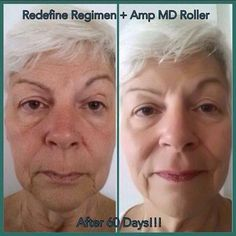 Reduce visible appearance of lines, pores and loss of firmness and get that softer, smoother looking skin with Rodan + Fields REDEFINE Regimen. My Rodan And Fields, Rodan And Fields Redefine, Rodan And Fields Roller, Amp Md Roller, Redefine Regimen, Black M, Face Yoga, Acne Spots, Facial Exercises