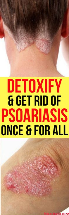 Psoriasis can be treated and there are natural remedies that can help you to cure it. Understanding Psoriasis Many people think that psoriasis is as same as any other inflammatory disease like eczema, dermatitis, but actually, psoriasis