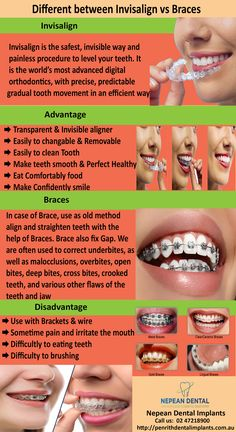Eight Tooth Implant Before And After Cosmetic Dentistry Teeth Whitening Procedure, Teeth Whitening Remedies, Teeth Implants, Dental Implants, Implant Dentistry, Cosmetic Dentistry, Invisalign Vs Braces, Dental Health, Dental Hygiene