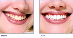 Considering the best method for you will inevitably lead you to the best product.  It guarantees you will buy one you find easy to use and can incorporate into your everyday life with ease. For More Information https://eclipsewhitening.com/houston-teeth-whitening-solutions/