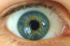 Heterochromia, central . . . This is pretty much what mine are like the yellow is just a little lighter.