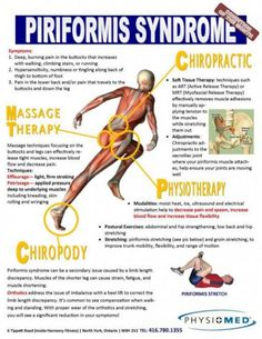 Back surgery dealing with sciatic pain,exercises to relieve sciatica hip pain how to alleviate sciatic back pain,ischiadic nerve pain lower back pain. Hip Pain, Back Pain, Piriformis Syndrome Symptoms, Pilates, Psoas Release, Si Joint, Sciatic Pain, Sciatic Nerve, Sciatica Stretches