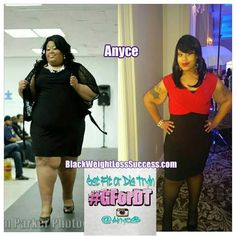 Weight Loss Transformation: Anyce lost 176 pounds