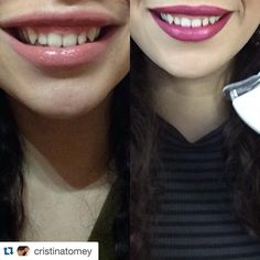 """""""#Repost @cristinatomey with @smilesciencesstreetteam ・・・ My results after two uses of my @smilesciences whitening kit. I'd say this is pretty darn good…"""""""