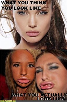Society thinks that big lips are beauty