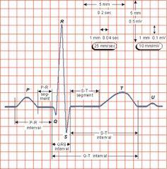 Los pasos obligados a seguir frente a cualquier trazado son los siguientes: Determinar la frecuencia cardiaca Diagnosticar el tipo de ritmo Calcular el eje en el plano frontal Medir intervalo PR y/ó PP Estudio de la onda Estudio del QRS Análisis del segmento ST y onda T Medida del QTc en varias derivaciones y promediarlo Verificar la presencia de onda U