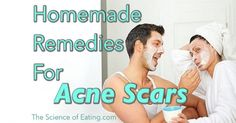 Many people ask me if I have created recipes of face mask for acne scars, and actually I have knowledge of some great items that ...