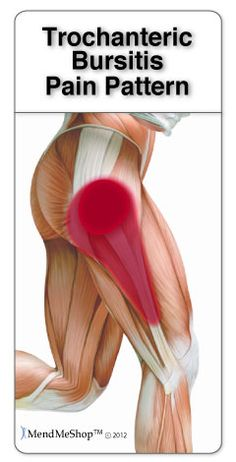 Trochanteric bursitis is often caused by the iliotibial band IT band tightening and rubbing against the bursa Pain may radiate from the hip down the outside of the thigh trochanteric HipFlexor # Hip Bursitis Exercises, Bursitis Hip, Postural, Psoas Release, Hip Problems, Sciatica Pain, Scoliosis, Hip Workout, Boxing Workout