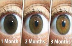 Une cataracte est un trouble de la lentille dans l'œil qui entraîne une diminution de la vision. Les cataractes se développent souvent lentement et peuvent affecter un ou les deux yeux. Les symptômes peuvent inclure des couleurs fanées, une vision floue, des halos autour de la lumière, des problèmes avec des lumières lumineuses et des …