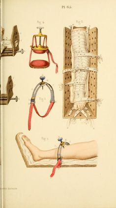 ☤ MD ☞☆☆☆Manual of surgical bandages, 1859 (pinterest.com/pin/287386019948326046).