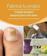 El tratamiento del pie del callo el hongo