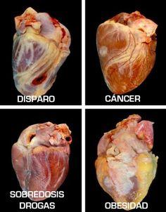 ¿Como se ve el corazón de una persona con obesidad?