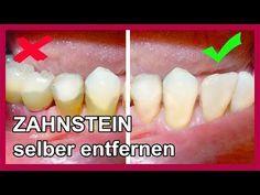 Zahnbelag Zahnstein selber entfernen mit diesen Hausmittel - so gehts - YouTube