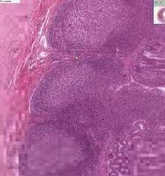 Small Intestine Ileum