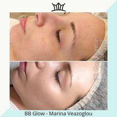 #beautylashesgr #wrinkles #beautyqueen #makeup #makeupaddict #makeuplover #makeupjunkie #makeupblogger #bb #glow #bbglow #bbglowkorea #bbglowgreece #flawless Medical Spa, Beauty Queens, Makeup Junkie, Makeup Addict, Greece, Bb, Glow, Instagram, Grease