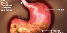 The Best Natural Treatments for Acidity and Gastric Distress