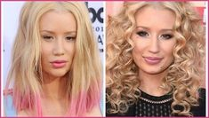 Iggy Azalea confirms she's had a nose job after admitting to having - Types Of Plastic Surgery, Celebrity Plastic Surgery, Lip Injections, Iggy Azalea, Rhinoplasty, My Hair, Breast, Hair Beauty, Lips