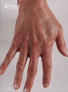 Pin By Millie Holcombe Mi On Beauty In 2020 Crepey Skin Crepe Skin Skin
