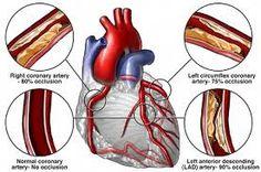 Coronary artery bypass