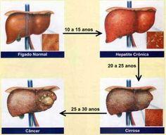 Novos medicamentos para hepatite C - http://soropositivo.net.br/hiv-aids-hpv-hepatite/novos-medicamentos-para-hepatite-c.html