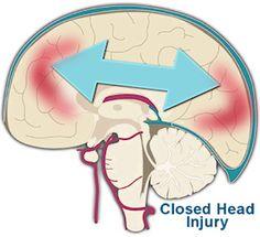 Brain Injury Association of America: Mild Brain Injury/Concussion