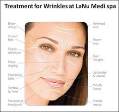 Look young as you feel with laser anti-wrinkle, dermastamping and Botox treatments that reduces unwanted signs of aging, including wrinkles around your eyes and mouth. Find out here the suitable treatment options for each facial area with their prices. Botox Injection Sites, Botox Injections, Cosmetic Clinic, Cosmetic Dentistry, Wrinkle Treatment, Anti Aging Treatments, Botox Lips, Nasolabial Folds, Botulinum Toxin