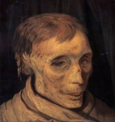 Bothwell, study of his mummified head by O Bache 1861