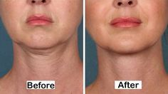 Ditch that Double Chin! Is Kybella the New Botox? Lose Fat In Face, Reduce Face Fat, Fat Face, Neck Liposuction, Reduce Double Chin, Natural Face Lift, Face Exercises, Facial Muscles, Facial Yoga