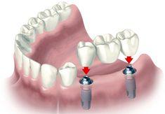 Son elementos artificiales que sustituyen la raíz de un diente, forman parte de un tratamiento global de rehabilitación de la boca. Si en un inicio se optó por sustitutos removibles de los dientes o los puentes fijos en porcelana, los implantes const