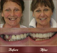 Though we are now in modern era yet a number of people suffer tooth loss mainly due to tooth decay, gingivitis (gum disease), or injury. Dental implants in west London has come to you with staggering solution. Implant look and feel like your own teeth and because they are typically designed to fuse with bone, implants become permanent and also work like the natural teeth. http://www.zimbio.com/Dentistry/articles/F5i5hbZZ1vw/Dental+surgery+west+London+closer+look+Dental?add=True