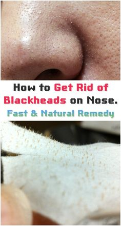 How to Get Rid of Blackheads on Nose   Style Idea