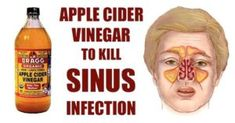 How To Kill Sinus Infection Within Minutes With Apple Cider Vinegar