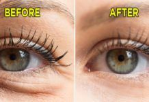 7 Simple Ways to Naturally Reduce Wrinkles