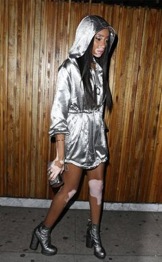 Winnie Harlow from The Big Picture: Today's Hot Photos  Shining in silver! The model is spotted in Los Angeles.